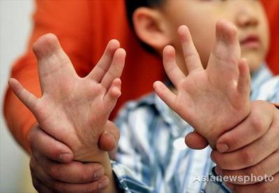 手足に合計31本の指がある少年