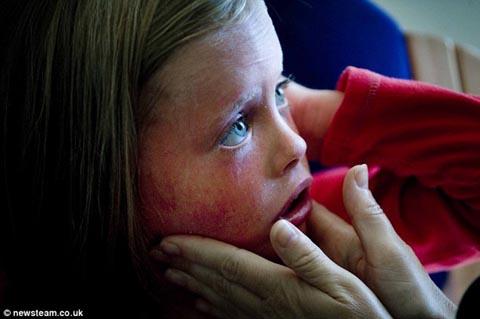 24時間で皮膚が入れ替わってしまう5歳の少女