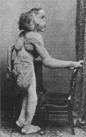 サーカスで人気のあったフリークス達の写真 「エレファント・マン」