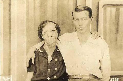 サーカスで人気のあったフリークス達の写真 「ラバ女」、Grace McDaniels。1888年生まれ。