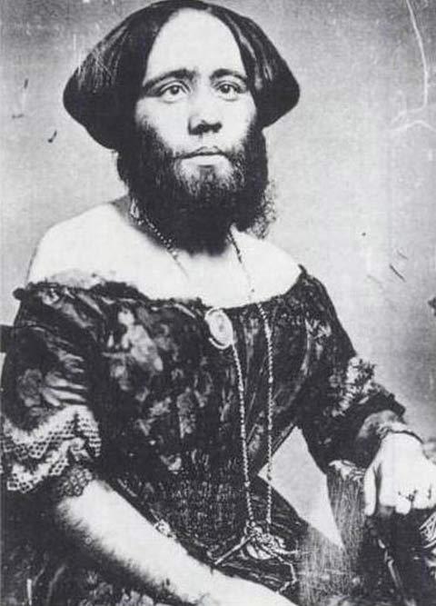 サーカスで人気のあったフリークス達の写真 「ヒゲモジャ少女」、Josephine Clofullia。1827年スイス生まれ。