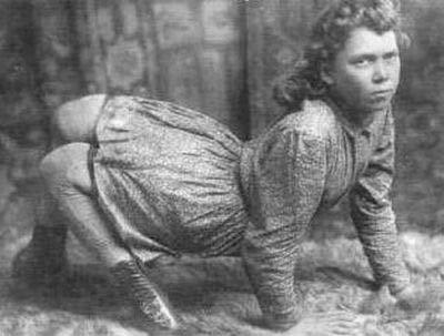 サーカスで人気のあったフリークス達の写真 「ラクダ少女」、Lucy Elvira Jones