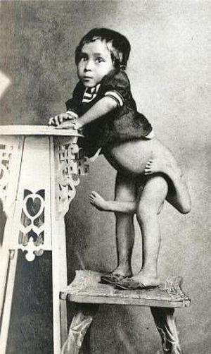サーカスで人気のあったフリークス達の写真 Maxine Mina、1896年フィリピン生まれ