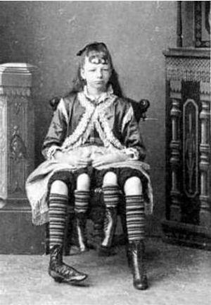 サーカスで人気のあったフリークス達の写真 4本足を持つ少女、Myrtle Corbin。1868年テネシー生まれ