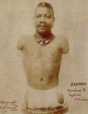 サーカスで人気のあったフリークス達の写真 Prince Randian氏。1889年生まれ。