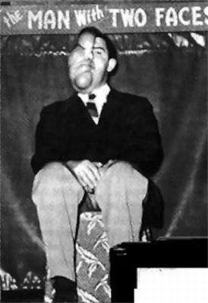 サーカスで人気のあったフリークス達の写真 2つの顔をもつ男、Robert Milwin。1920年生まれ
