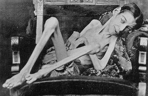 サーカスで人気のあったフリークス達の写真 Rosa Lee Plemons、1873年カリフォルニア生まれ