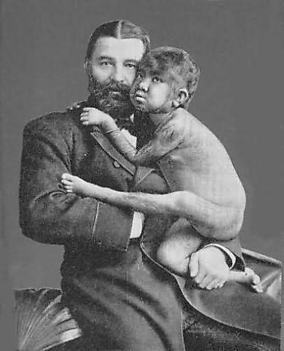 サーカスで人気のあったフリークス達の写真
