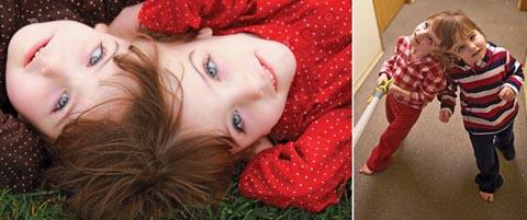 脳、思考、感覚を共有する双子 タチアナとクリスタ